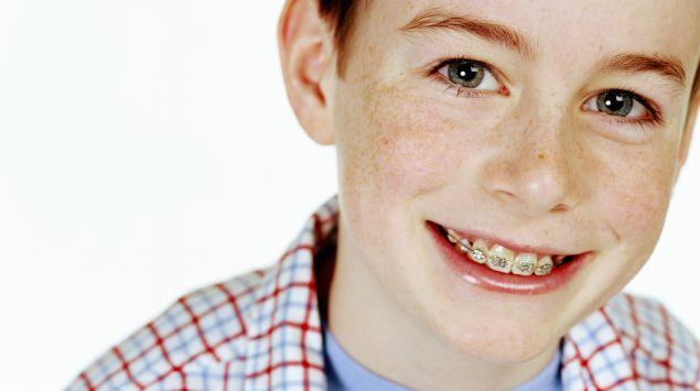 Das Bild zeigt einen Jungen mit Zahnspange.