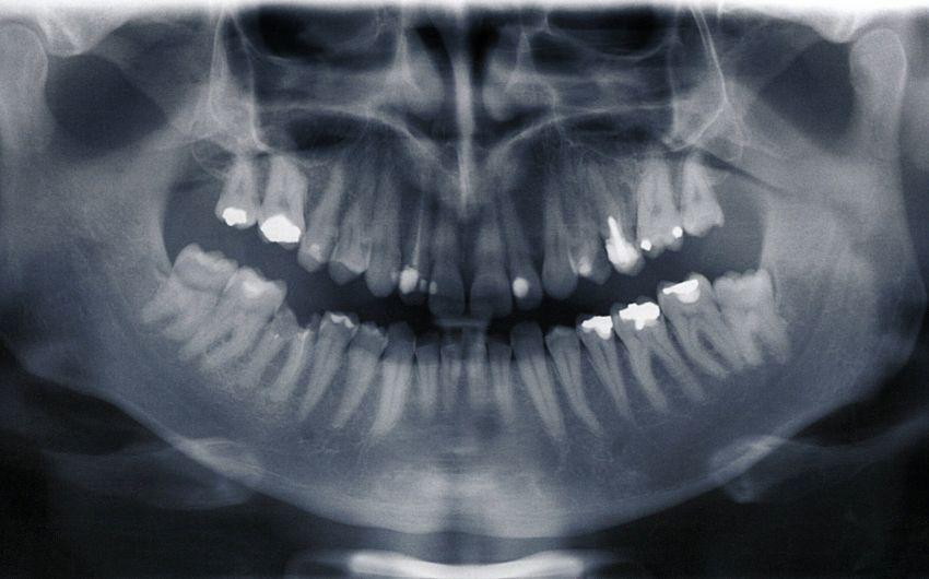 Röntgenaufnahme der Zähne.