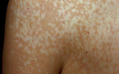 Pilzinfektion: Kleienflechte