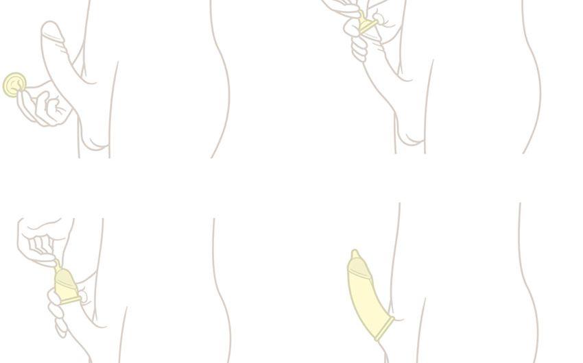 Schematische Darstellung zum richtigen Überstreifen eins Kondoms.
