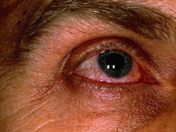 Das Mandelöl von den Wassergeschwülsten unter den Augen