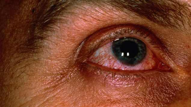 Man sieht ein Auge mit Bindehautentzündung.