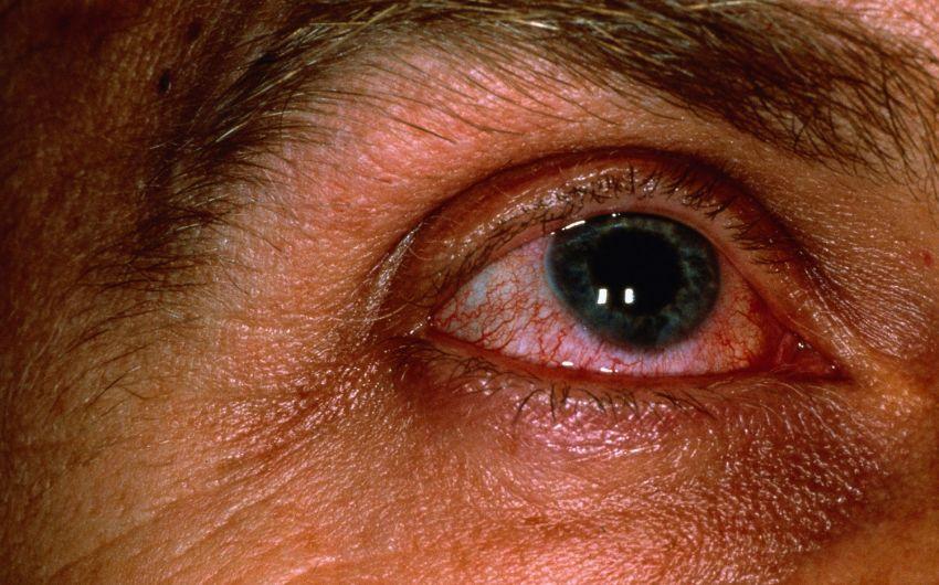 Rote Augen: Man sieht ein Auge mit Bindehautentzündung.