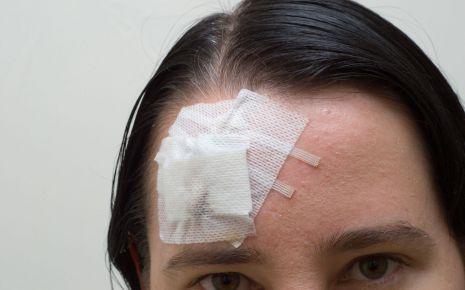 Man sieht eine Frau mit einer Kopfverletzung.