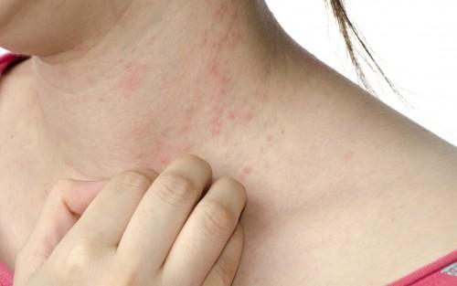 Das Bild zeigt eine Frau, die einen roten Hautausschlag am Hals hat.