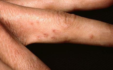 Das Bild zeigt die Krätze an einem Finger.