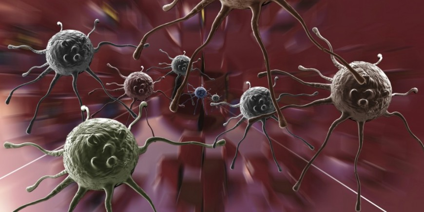 Brustkrebs-Heilung Tumor, Metastasen