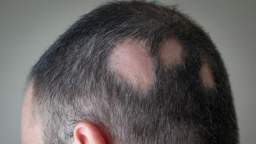 Das Bild zeigt den Kopf eines Mannes, der unter kreisrundem Haarausfall leidet.