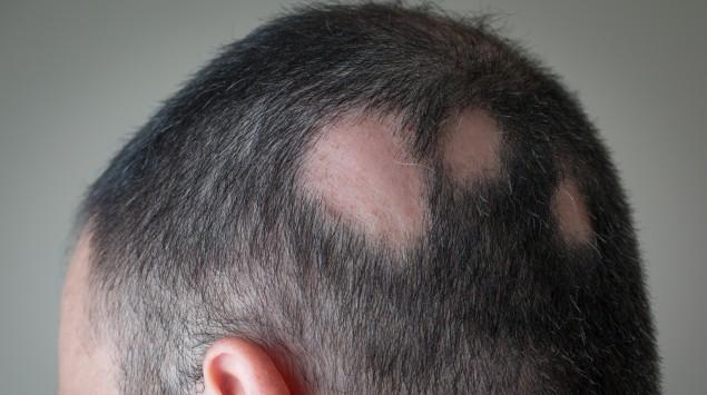 Das Bild zeigt den Kopf eines Mannes, der unter Haarausfall leidet.