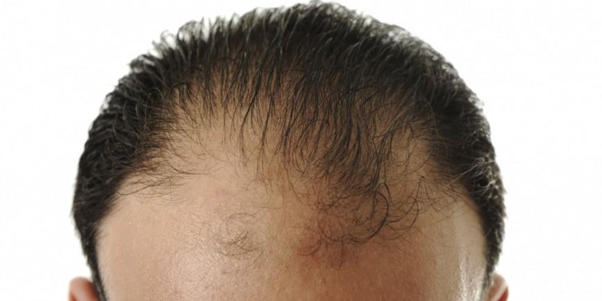 Die Maske estel curex für das beschädigte Haar die Rezensionen