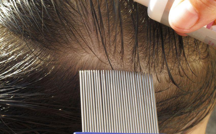 Das bild zeigt eine Person, die mit Kamm und Shampoo gegen Läuse behandelt wird.
