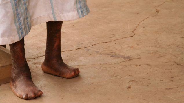 Das Bild zeigt Lepraerkrankte Beine