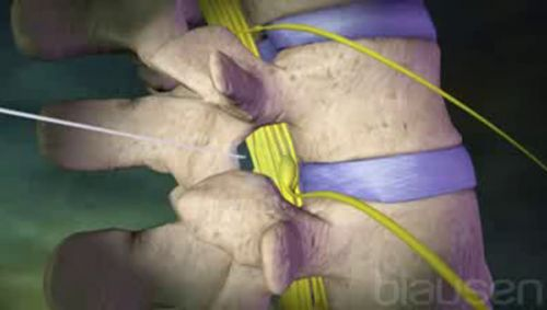 Lumbalpunktion Video