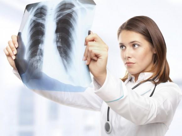 Lungenentzündung: Das Bild zeigt eine Ärztin, die ein Röntgenbild betrachtet.