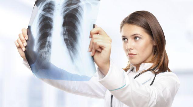 Das Bild zeigt eine Ärztin, die ein Röntgenbild betrachtet.