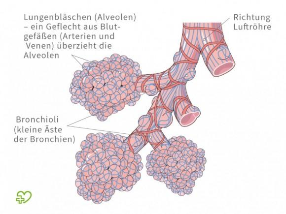 Lungenentzündung: Anatomie der Lungenbläschen