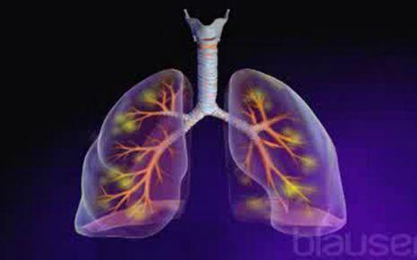 Lungenentzündung Video