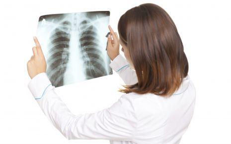 Ärztin betrachet einen Röntgenaufnahme des Brustkorbs.