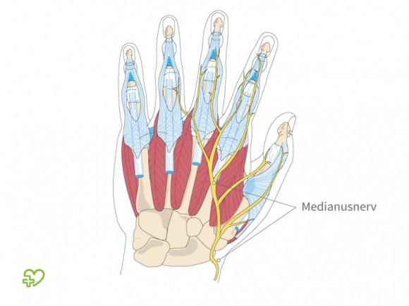 Medianusnerv in der Hand