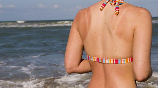 Das Bild zeigt eine Frau im Bikini von hinten am Meer mit Sonnenbrand.