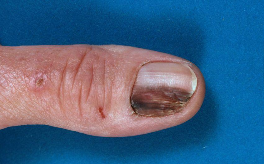 Ein Melanom unter einem Fingernagel.