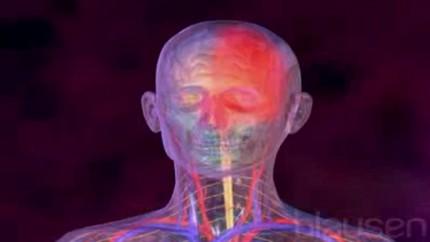 Video Migräne