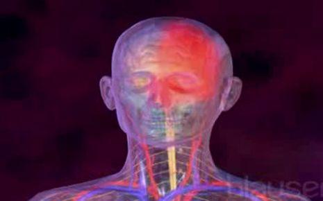 Migräne Video
