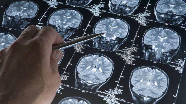 Man sieht  eine MRT-Aufnahme des Gehirns.