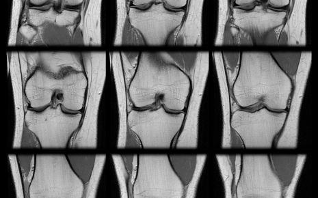 Das Bild zeigt mehrere MRT-Aufnahmen eines Kniegelenks.