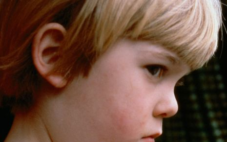 Man sieht ein Kind mit Mumps.