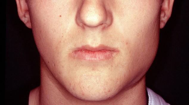 Man sieht einen jungen Mann mit Mumps.