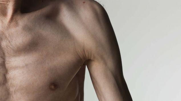 Das Bild zeigt einen dünnen, unmuskulösen Mann mit freiem Oberkörper.