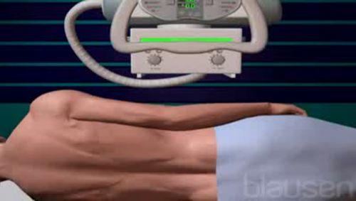 Myelographie Video