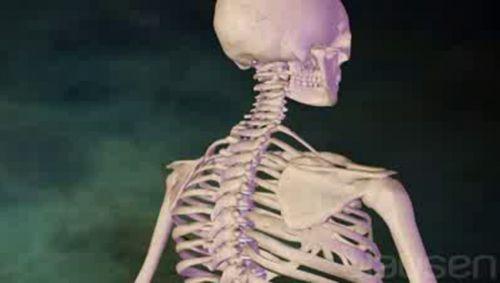 Nackenschmerzen Video