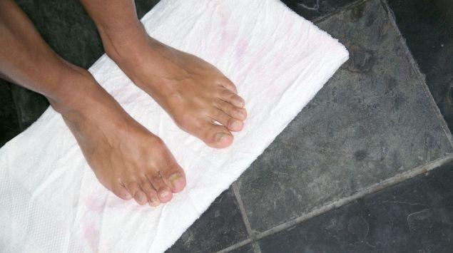Das Bild zeigt zwei Füße auf einem Handtuch.