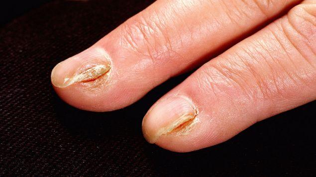 Das Bild zeigt mehrere Finger, die von Nagelpilz betroffen sind.