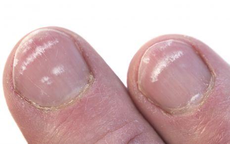 Man sieht Fingernägel mit Nagelverfärbungen.