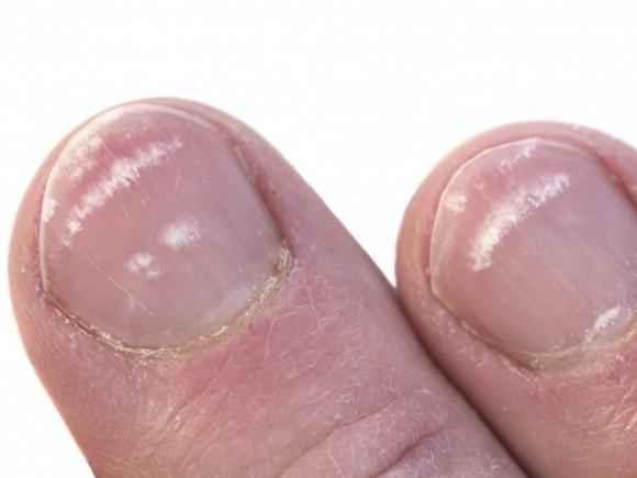 Die Klinik nach der Behandlung der Nägel in charkowe