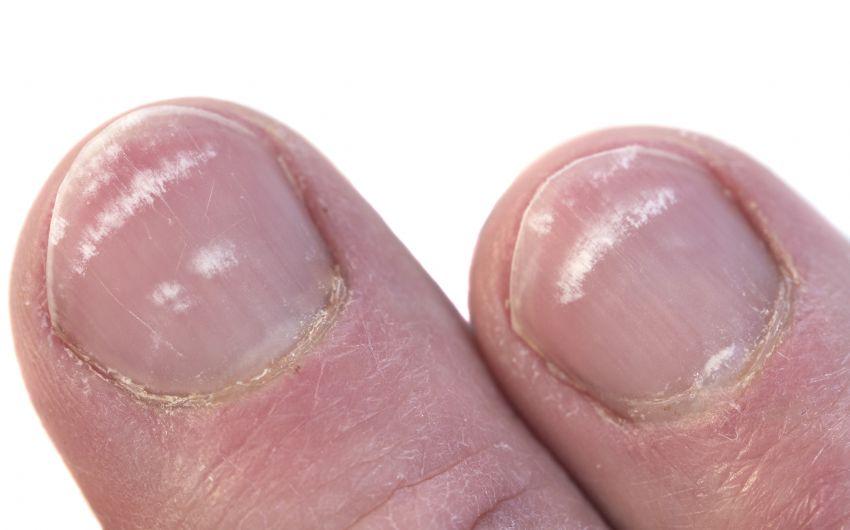 Bilder: Man sieht Fingernägel mit Nagelverfärbungen.
