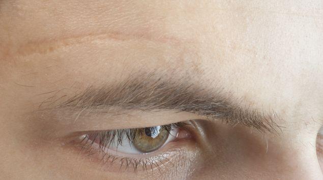 Das Bild zeigt eine Narbe über dem Auge eines Mannes.