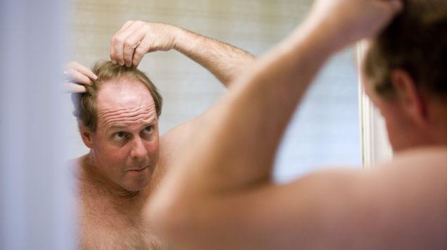 Man sieht einen Mann, der im Spiegel seine schwindende Haarpracht betrachtet.