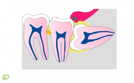 Schiefliegender Zahn
