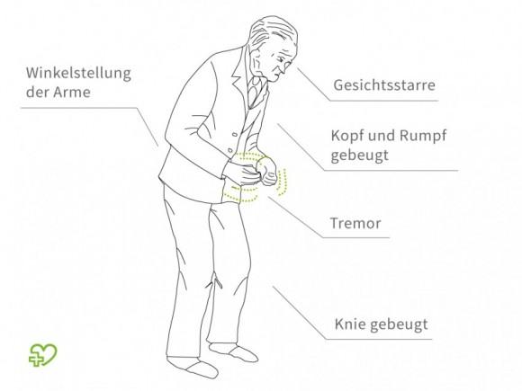 Eine grafische Abbildung der Parkinson-Symptome.