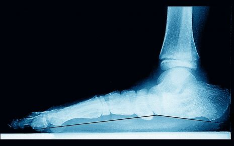 Das Röntgenbild eines Plattfußes.