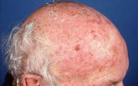 Aktinische Keratose Symptome Onmeda De