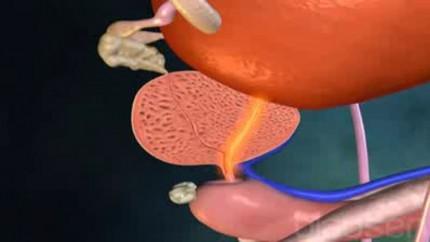 Video Prostatavergrößerung