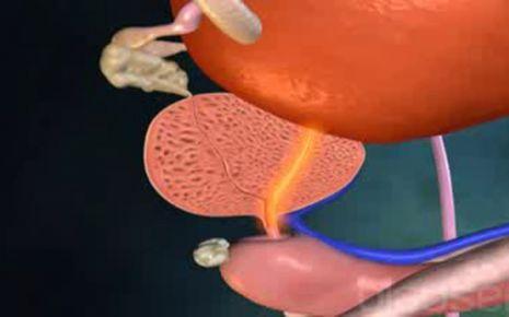 Prostatavergrößerung Video