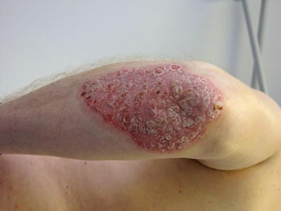 Los ungüentos de la miel de la psoriasis