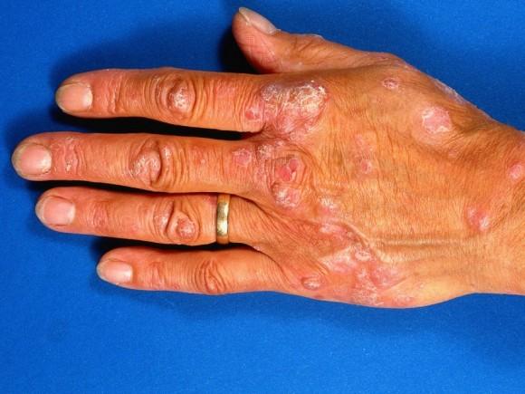 Die Dosis der Blattsäure bei der Schuppenflechte