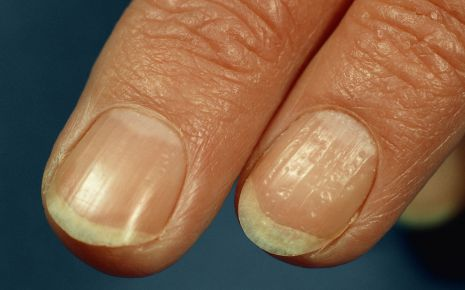 Eine Person mit Schuppenflechte an den Fingernägeln.